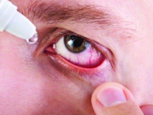 Phòng và điều trị đau mắt đỏ sau mưa lũ - Ảnh 3.