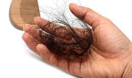 Đông y khắc phục chứng rụng tóc như thế nào?