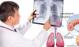 Bệnh viêm phế quản mùa lạnh: Ai dễ mắc, phòng và điều trị thế nào?