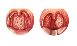 Viêm họng hạt: Nguyên nhân, triệu chứng chẩn đoán, điều trị và phòng ngừa